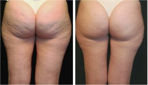 More Choices For Cellulite reduction