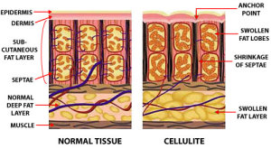 normal-cellulite-skin Discover Everything You Want To Know About Cellulite